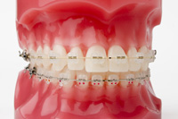 photo of clear braces