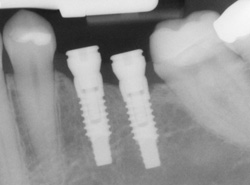 dental implants stone oak tx