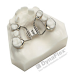 palatal expander